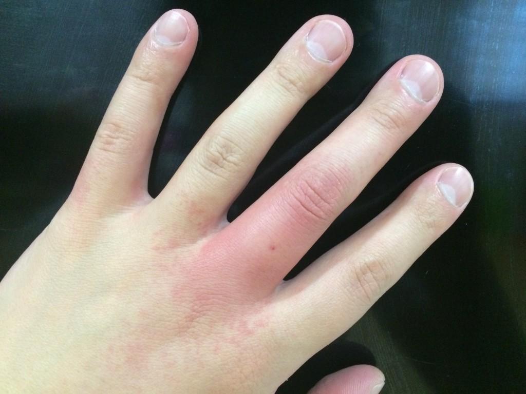 左手中指の根本ら辺が刺されました